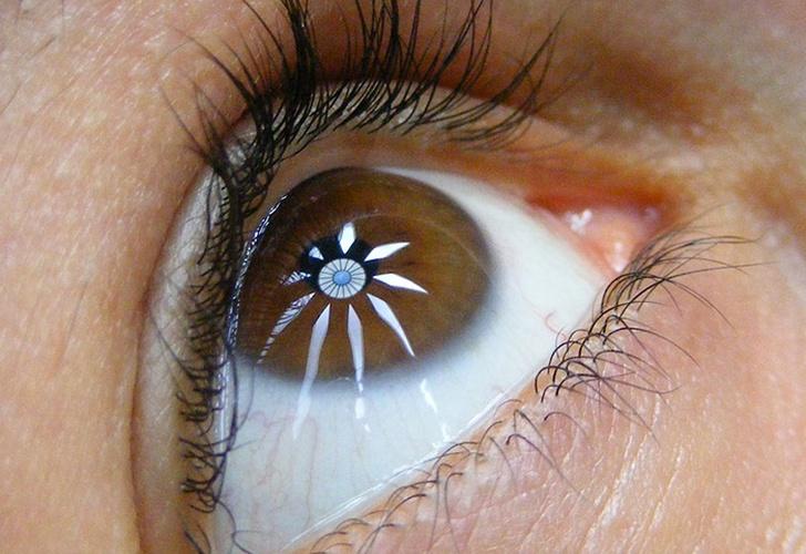 Le Detentan 500 Orificios En Los Ojos Por Uso Excesivo De