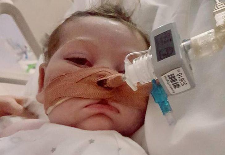 Médico de EU viaja a Londres con terapia experimental para bebé Charlie