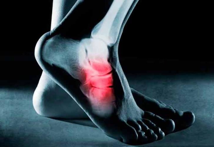 dolor planta del pie talon tratamiento