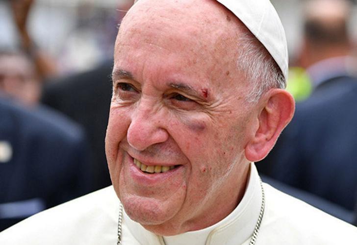 Así fue el golpe del Papa Francisco por frenón del papamóvil