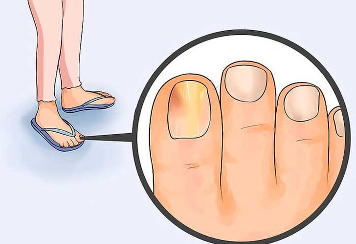 Unas delos pies con hongos tratamiento