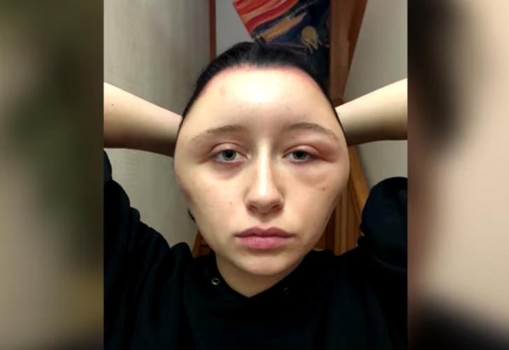 Una joven se tiñó el cabello y quedó desfigurada — Espantoso
