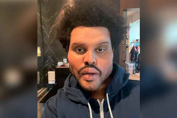 foto, the weeknd, rostro, deformaciones, musica, video,