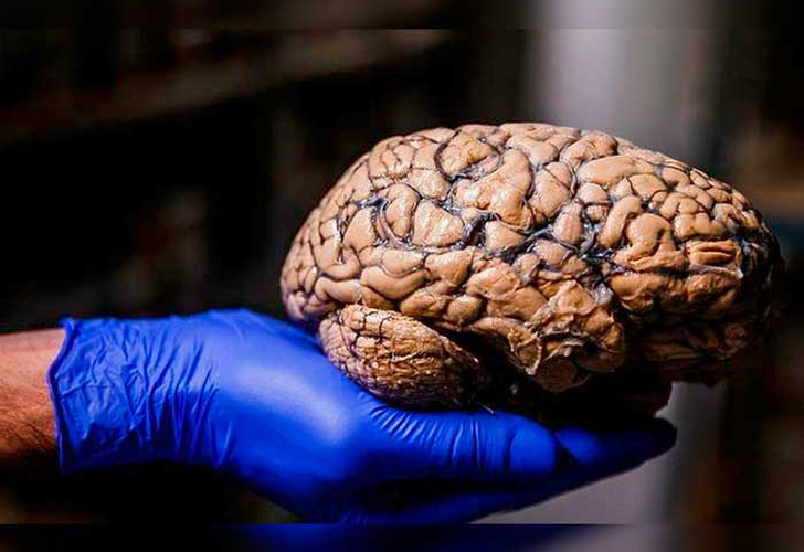 brain atlas, George Paxinos, human body, brain,