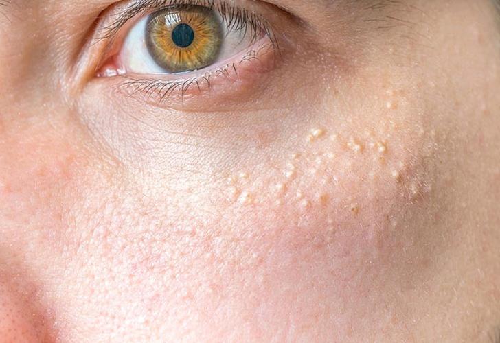 milia, secuelas en la piel, puntos blancos, quistes, queratina,