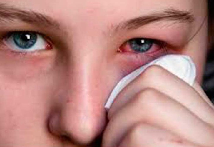 Remedios caseros conjuntivitis bacteriana