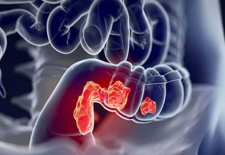 parasite, colon cancer, new cases, health,