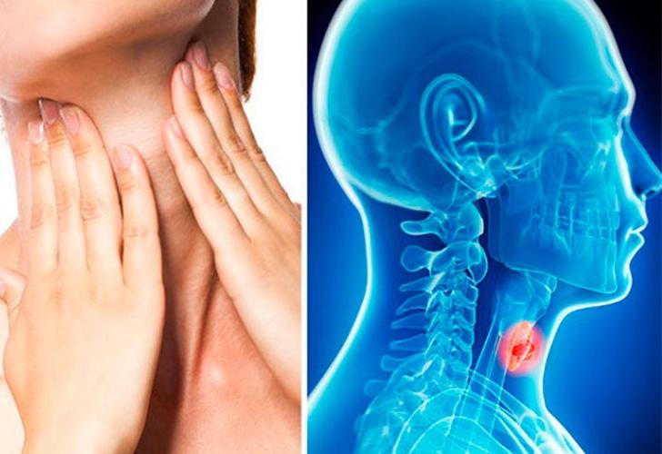 todo lo que debes saber del silencioso cáncer de garganta