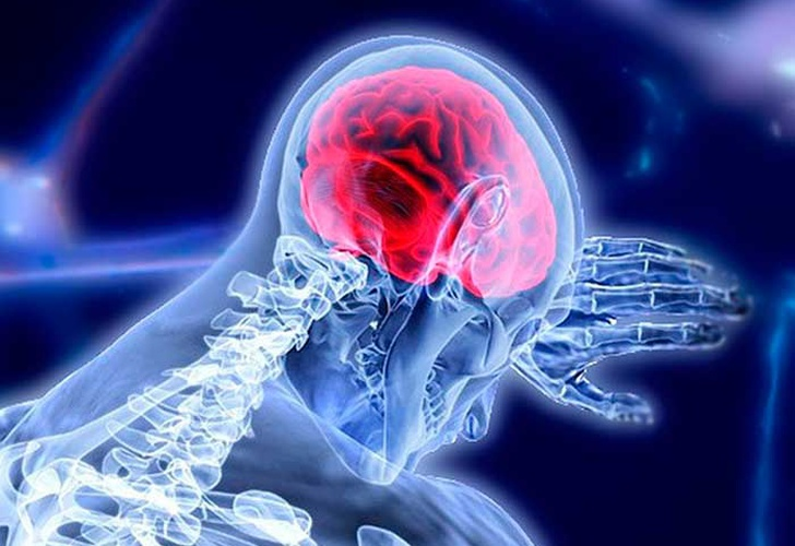 cerebral pacemaker, parkinson, cerebral region, electrical stimuli,