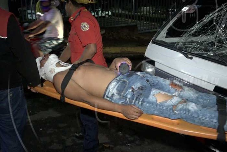 vidros, incrustado, rostro, ciclista, accidente, managua,