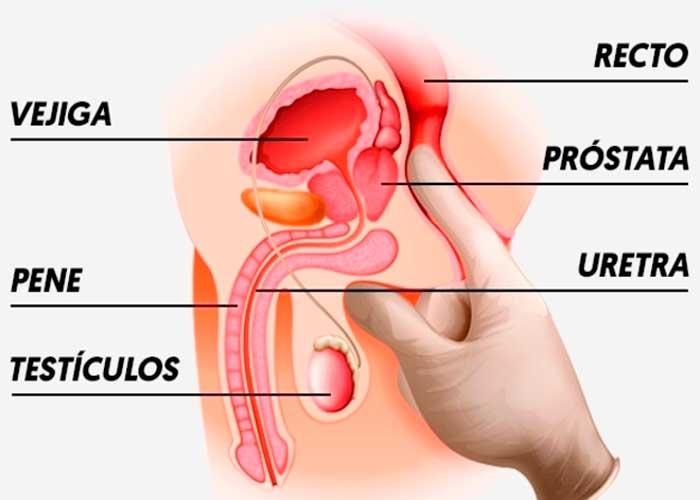 síntomas del cáncer de próstata 29 años