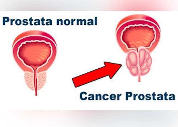 salud de la próstata en español para la salud