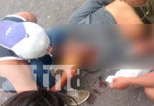 nicaragua, isla de ometepe, accidente de transito, perro,