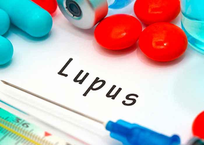 salud, lupus, dia mundial, sintomas, causas