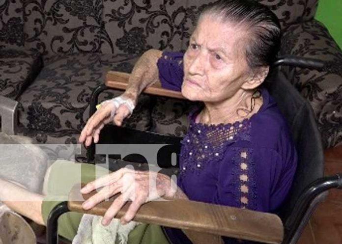 nicaragua, anciana, ayuda, solidaridad, accidente,