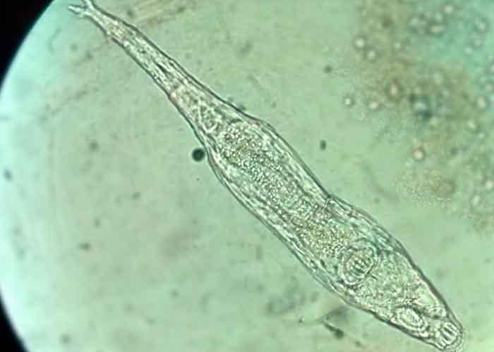 ciencia, animal microscopico, hallazgo, organismos, muestras