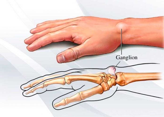 Ganglión, Causas, factores de riesgo, salud,