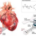 salud, ciencia, marcapasos transitorio, caracteristicas, novedades