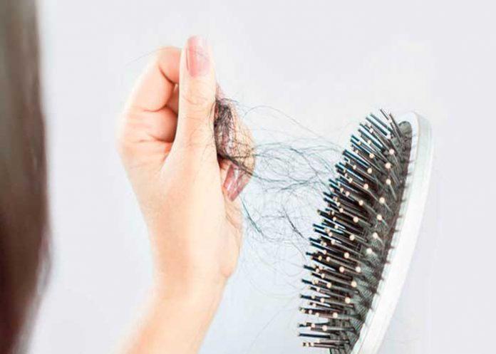 Si sufres caída excesiva de tu cabello, esta nota es para ti