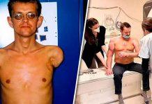 ¡Wow! Hombre que recibió primer trasplante de brazos ya puede mover sus bíceps