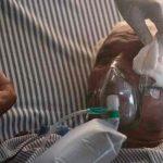 Bolivia confirma el primer caso de hongo negro en paciente con covid-19