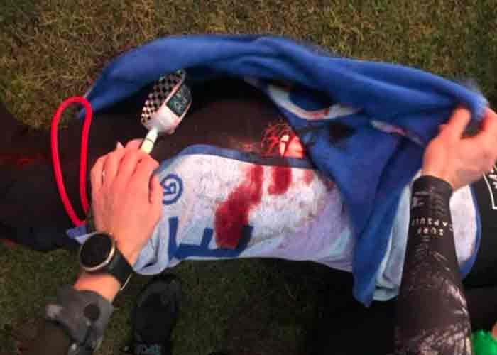 Revelan sangrientas fotos del ataque de un tiburón a un surfista sudafricano