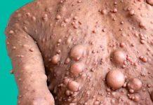 Mujer impacta al mundo al tener más de 200 tumores en todo su cuerpo