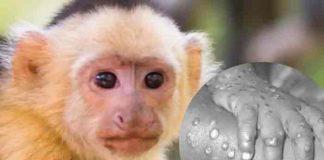 Identifican primer caso de viruela de mono en Texas, Estados Unidos