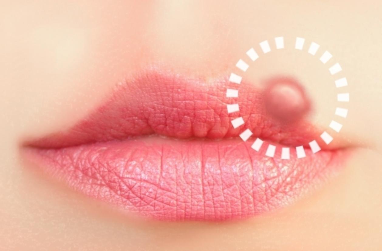 Herpes transmitida por el beso