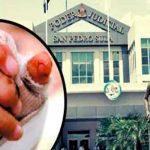 Liberan a padre que le quemó las manos a su hija en Honduras