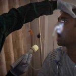 Dos de cada tres enfermos por hongo negro mueren