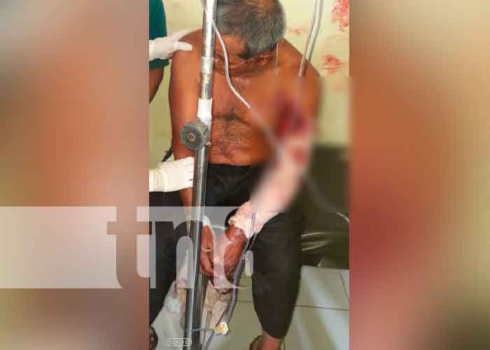 Persona herida en accidente de tránsito en Jinotega